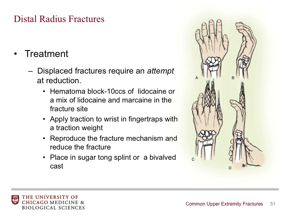 Common Upper Extremity Fractures - BroadcastMed