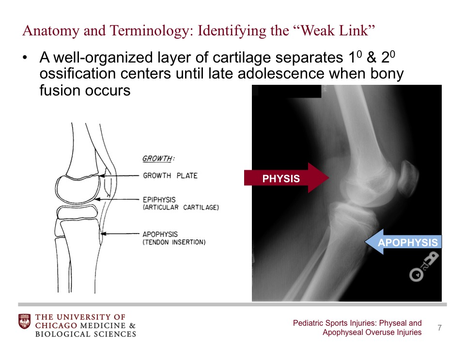 Pediatric Sports Injuries: Physeal and Apophyseal Overuse Injuries ...
