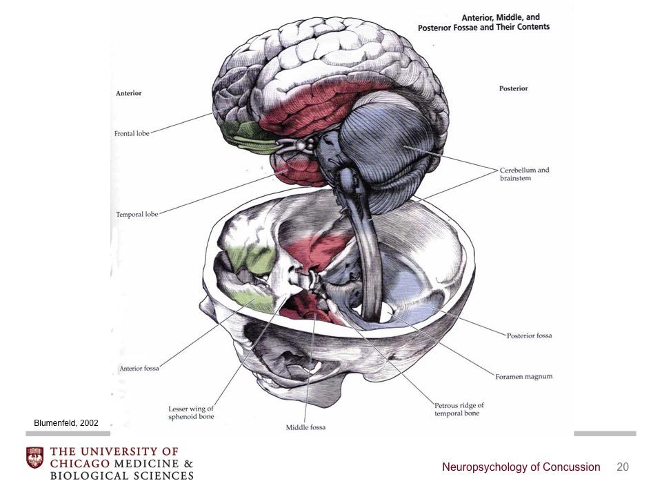 Perfect Anatomy Of Concussion Elaboration - Human Anatomy Images ...
