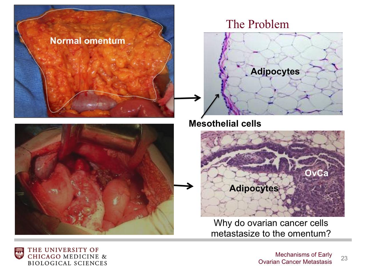 Mechanisms Of Early Ovarian Cancer Metastasis Broadcastmed