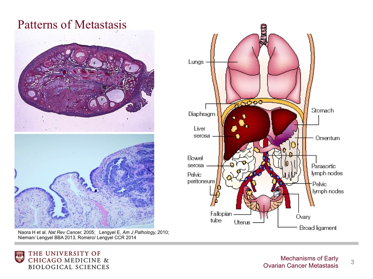 Mechanisms Of Early Ovarian Cancer Metastasis Broadcastmed