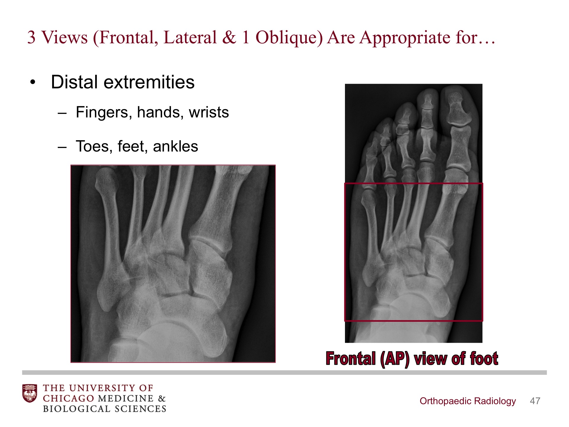 Orthopaedic Radiology - BroadcastMed