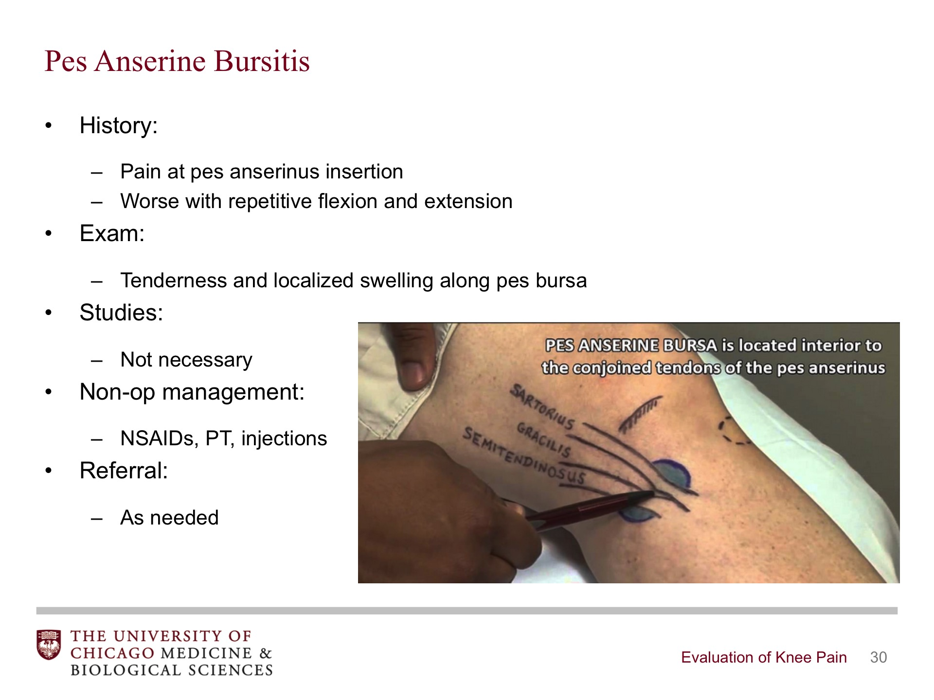 Evaluation Of Knee Pain Broadcastmed