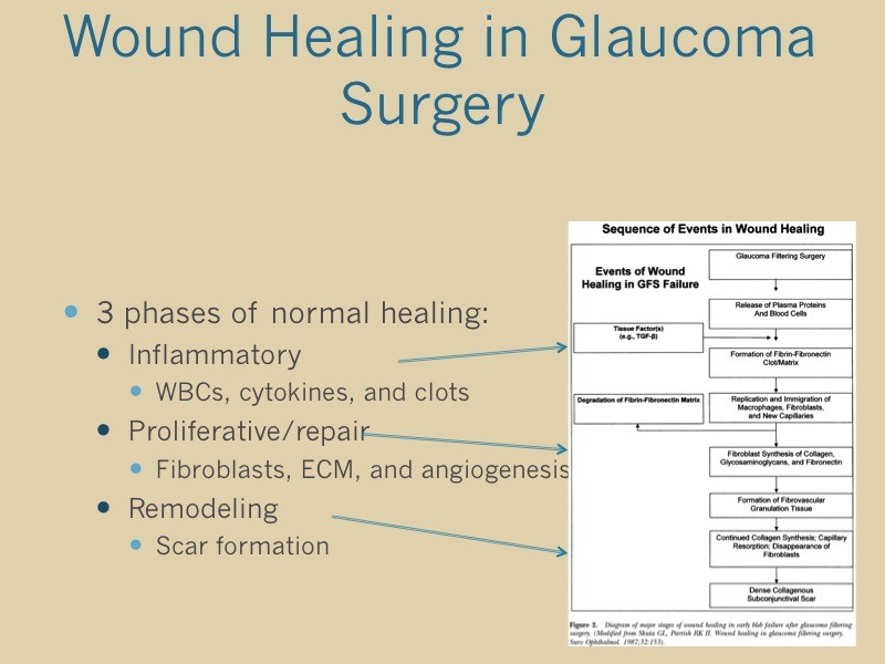 Papers to Practice: Modulation of Glaucoma Filtration
