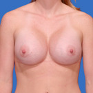 Breast-augmentation_t?1331017339