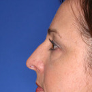 Eyelid-surgery-lower_t?1331017866