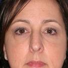 Eyelid-surgery-lower_t?1331017871