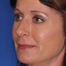 Eyelid-surgery-lower_t?1331017881