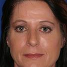 Eyelid-surgery-lower_t?1331017892
