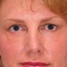 Eyelid-surgery-lower_t?1331017906