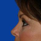 Eyelid-surgery-lower_t?1331017911
