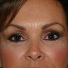 Eyelid-surgery-lower_t?1331017917