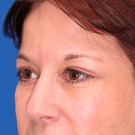 Eyelid-surgery-lower_t?1331017922