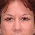 Eyelid-surgery-lower_t?1331017927