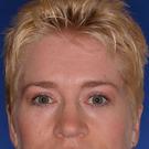 Eyelid-surgery-lower_t?1331017941