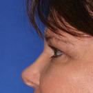 Eyelid-surgery-lower_t?1331017946