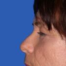 Eyelid-surgery-lower_t?1331017954