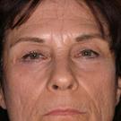 Eyelid-surgery-lower_t?1331017959