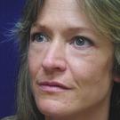 Eyelid-surgery-lower_t?1331017964