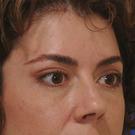 Eyelid-surgery-lower_t?1331017991