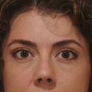 Eyelid-surgery-lower_t?1331018000