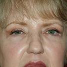 Eyelid-surgery-lower_t?1331018011