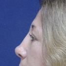 Eyelid-surgery-lower_t?1331018021