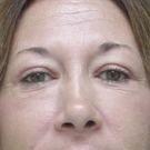 Eyelid-surgery-lower_t?1331018026
