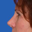 Eyelid-surgery-lower_t?1331018032
