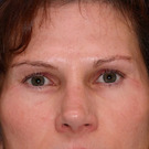 Eyelid-surgery-lower_t?1331018037