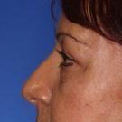 Eyelid-surgery-upper_t?1370975755
