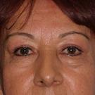 Eyelid-surgery-upper_t?1370975712