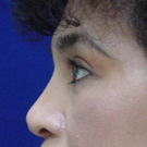 Eyelid-surgery-upper_t?1331018056