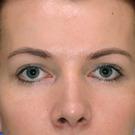 Eyelid-surgery-upper_t?1331018071