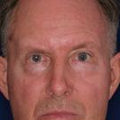 Eyelid-surgery-upper_t?1331018089