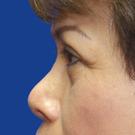 Eyelid-surgery-upper_t?1331018095
