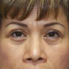 Eyelid-surgery-upper_t?1331018099