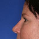 Eyelid-surgery-upper_t?1331018116