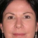 Eyelid-surgery-upper_t?1331018126