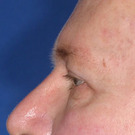 Eyelid-surgery-upper_t?1331018137