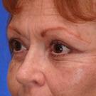 Eyelid-surgery-upper_t?1331018148