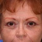 Eyelid-surgery-upper_t?1331018154