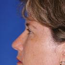Eyelid-surgery-upper_t?1331018194