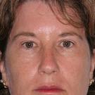 Eyelid-surgery-upper_t?1331018199