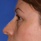 Eyelid-surgery-upper_t?1331018209