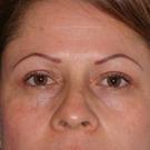 Eyelid-surgery-upper_t?1331018215