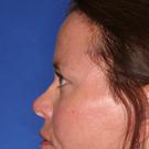 Eyelid-surgery-upper_t?1331018266