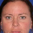 Eyelid-surgery-upper_t?1331018271