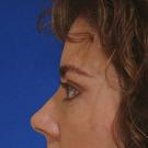 Eyelid-surgery-upper_t?1331018281