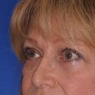 Eyelid-surgery-upper_t?1331018292